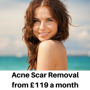 Acne Scar Removal at Smooth and Simple