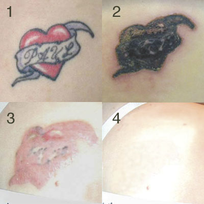Painless Tattoo Removal at Smooth and Simple