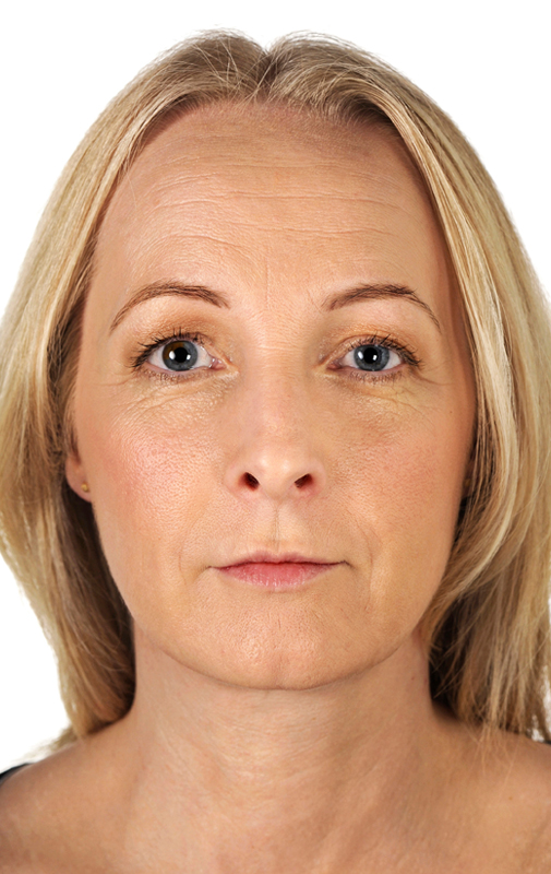 Restylane Dermal Filler at Smooth and Simple