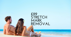 £99 a Month Stretch Mark Removal