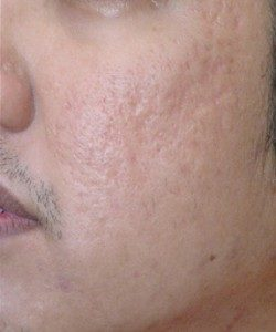 Acne Scar After