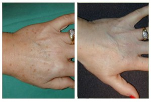 Hand Rejuvenation at Smooth and Simple Manchester
