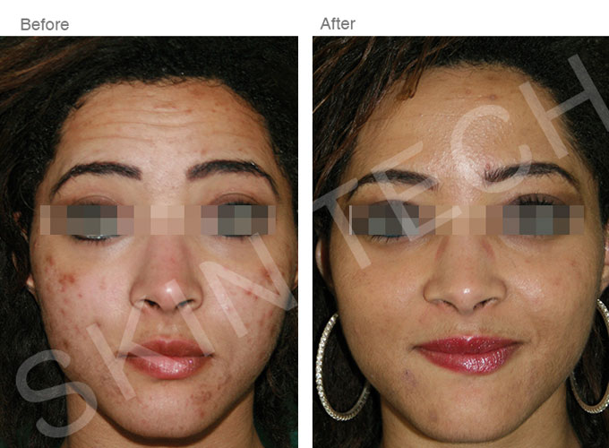 Skin Peels at Smooth and Simple Acne Reduction