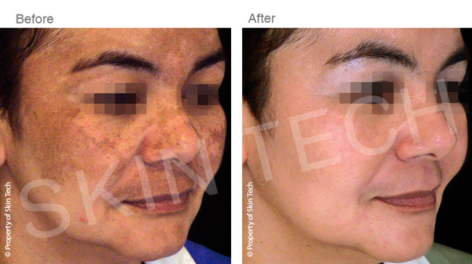 Skin Peels at Smooth and Simple Pigmentation Problems