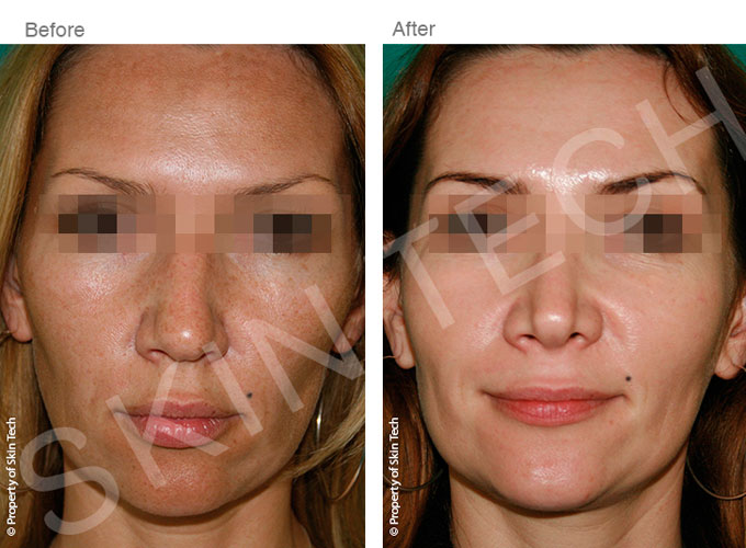 Skin Peels at Smooth and Simple Skin Rejuvenation