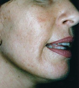 Anti Wrinkle After