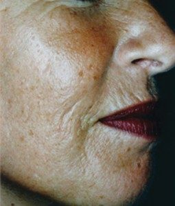 Anti Wrinkle Before