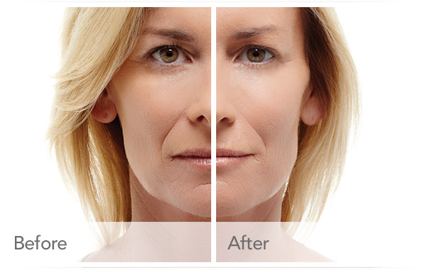 Dermal Fillers Manchester | Smooth Out All Lines & Replace
